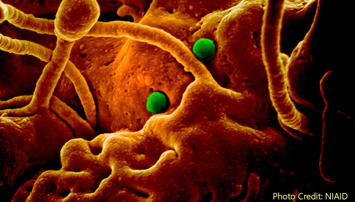722 dead and counting due to Coronavirus, What next?