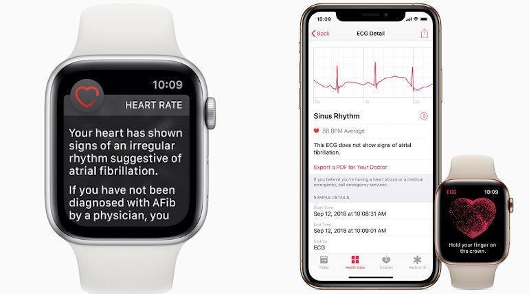 Apple Heart Study Promises for Digital Health in near future