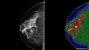 Is 3D breast cancer detection better than the 2D
