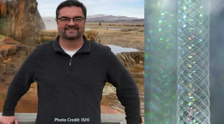 Bone marrow transplant transforms a man to chimera with two DNA in Nevada, USA