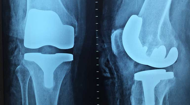 Knee surgery details that help to have a happy life