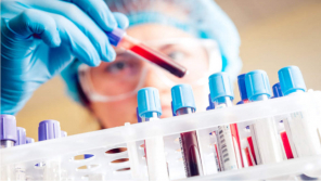 Saliva samples test to control risk of outspread.