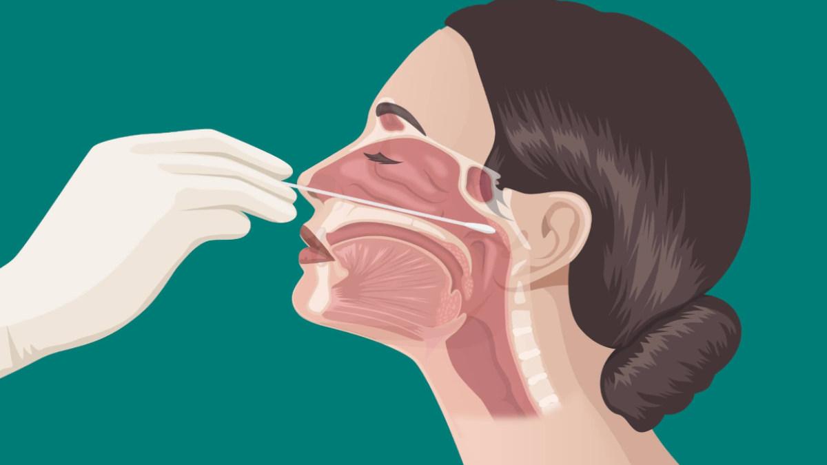Nasal swab could damage the brain